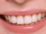 はの黄ばみと白い歯