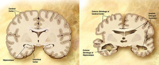 アルツハイマーの脳