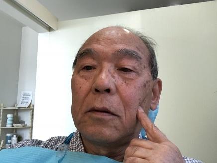 4032018 小早川歯科S2