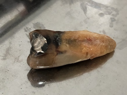 4032018 小早川歯科S3