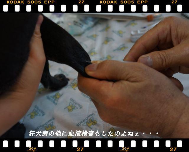 円血液検査