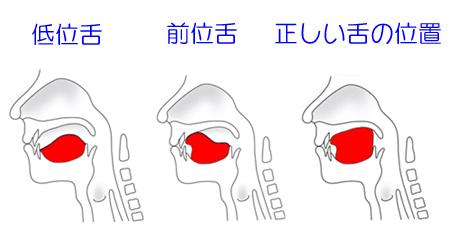 低位舌・前位舌・正しい舌の位置